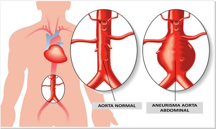 Dr. Wilson Michaelis publica artigo no Jornal Vascular Brasileiro/2017 sobre Dissecção aórtica de tipo B de Sanford.